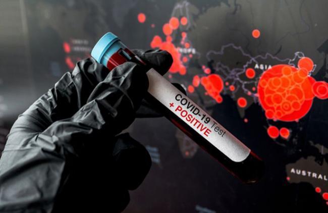 За останню добу у Любарському районі зафіксовано 14 нових випадків захворювання на COVID-19